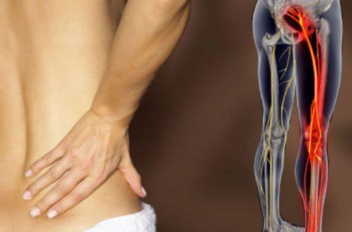 La Sciatica: cause, sintomi e cura